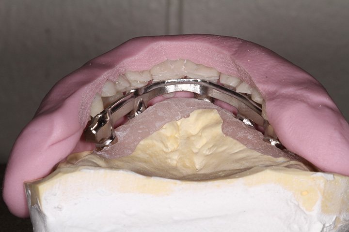 Precision Art Dental Lab